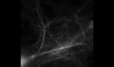 نخستین تصاویر ویدیویی از شکلگیری خاطره در مغز