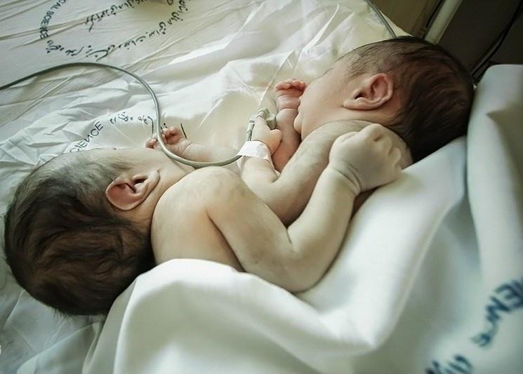 تولد دو قلوهای به هم چسبیده