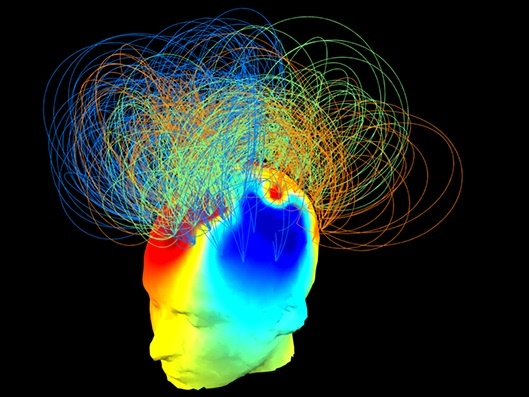 تعیین سطح هوشیاری با تصاویر رنگینکمانی