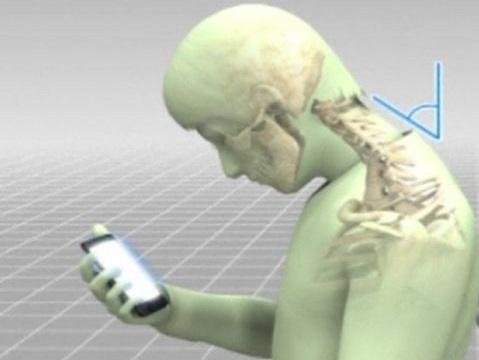 استفاده نادرست از موبایل چه بلایی بر سر گردن میآورد؟