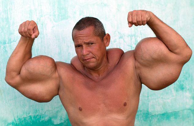 دور بازوهای این مرد برزیلی 73 سانتیمتر است/داستان پرورش اندام کارهای برزیلی شبیه ایرانی هاست