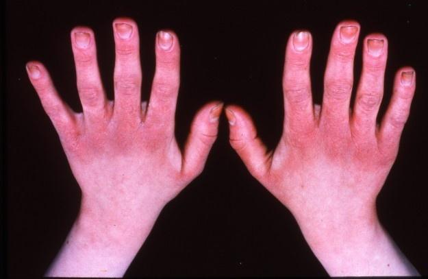 بیماری پوستی بگیرید تا سرطان پوست نگیرید!