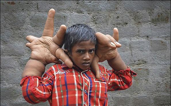 این کودک عجیبترین دستهای جهان را دارد