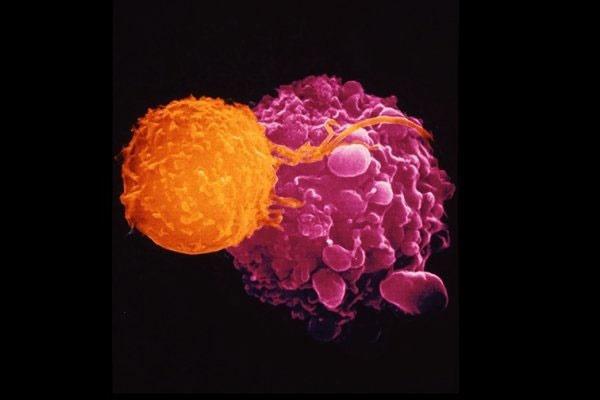 مقابله با سلولهای سرطانی به وسیله ویروس تبخال
