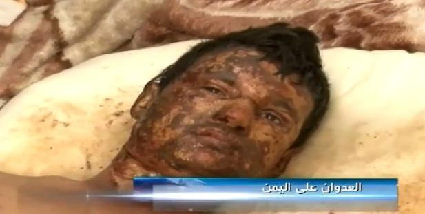 دوربین العالم از جنایتی هولناک در یمن پرده برداشت