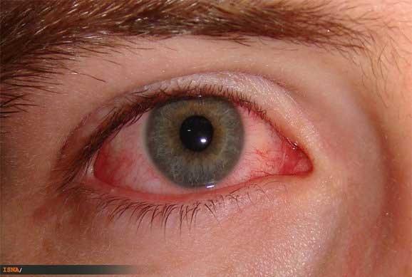 همه چیز درباره چشمهای قرمز رنگ در بهار