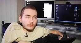 مرد روس در اتاق انتظار عجیب ترین جراحی دنیا؛ پیوند سر زنده به بدن فردی مرده