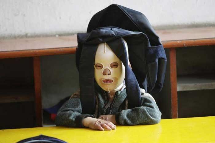 این پسربچه باید همیشه ماسک بزند