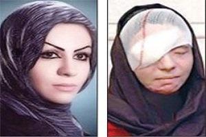 روایت معصومه عطایی؛ پنج سال بعد از اسیدپاشی