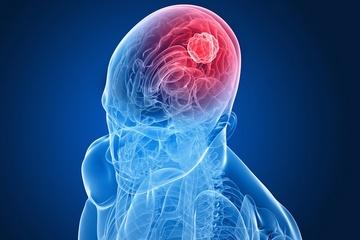 افزایش احتمال ابتلا به تومور مغزی به خاطر چاقی