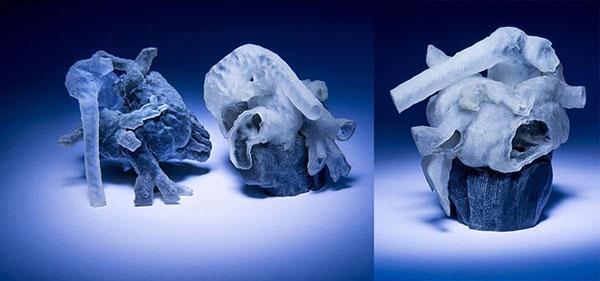 کاهش خطر جراحی با تمرین روی قلب چاپ شده سه بعدی