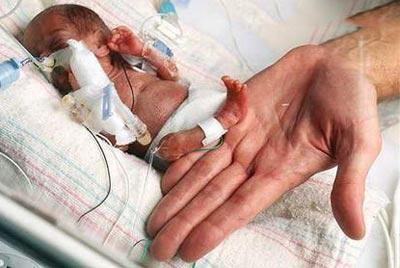 اعتیاد والدین عامل ایجاد بیماریهای مادرزادی و سرطان در نوزادان