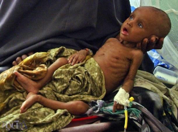 تصاویر | نگاهی به زندگی گرسنگان در جهانی که یکسوم مواد غذایی هدر میروند