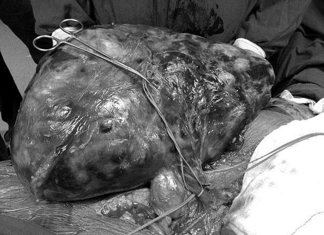 تصاویر تومور ۷ کیلوگرمی که از کلیه یک زن خارج شد