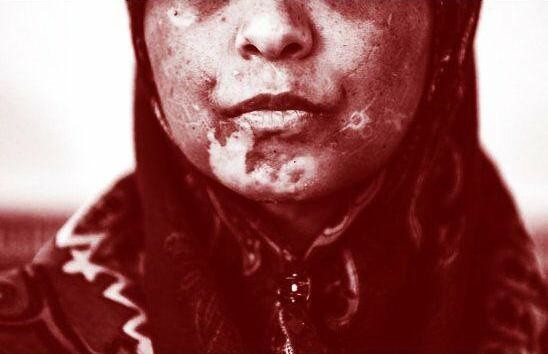 روایتی از حکم دادگاه زنی که ۲۱روز توسط شوهرش شکنجهشد / مناسب است، اما ۶ماه حبس برای کودکآزاری شدید؟