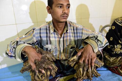 مرد درختی بنگلادش چطور عمل شد؟/امید به زندگی عادی پس از جراحی سخت