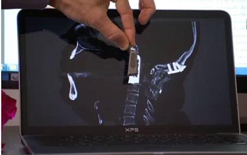 پیوند نخستین ستون فقرات تیتانیومی در بدن بیمار سرطانی/جراحی تاریخی با فناوری چاپ سه بعدی