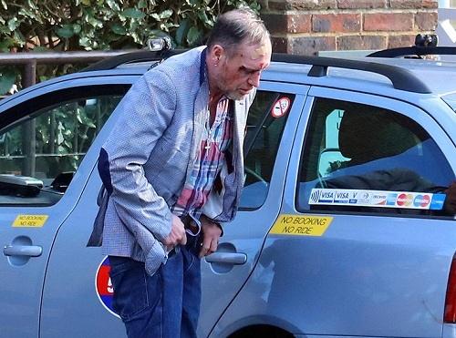 اعتیاد به الکل ستاره بزرگ فوتبال انگلستان را به این روز اسفناک انداخته است