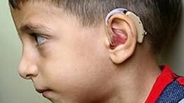 سالانه ۵ هزار نوزاد «کم شنوا» متولد می شود/ ضرورت اجرای برنامه غربالگری شنوایی