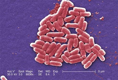 کابوس جهان تبدیل به واقعیت شد:کشف نخستین باکتری مقاوم در برابر همه آنتیبیوتیکهای دنیا