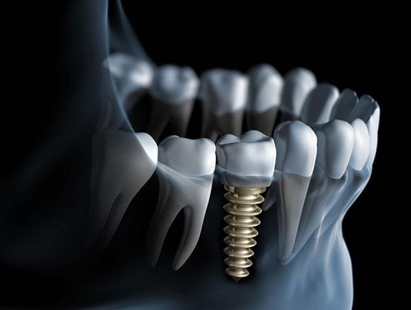 ایمپلنت دندان چطور صورت میگیرد؟/ همه مراحل در یک تصویر متحرک
