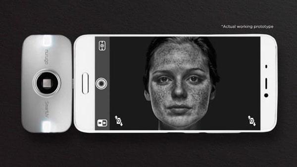 دوربینی که با موبایلتان سلامتی پوستتان را چک میکند