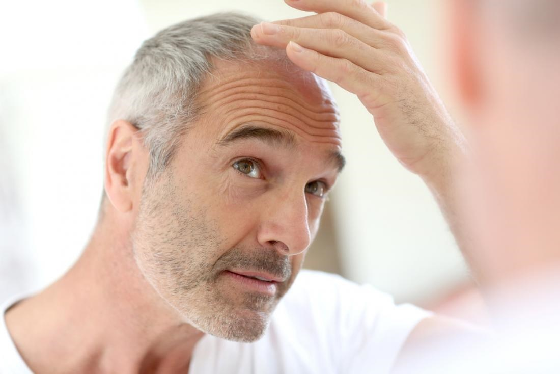 راهکار جدید پزشکان برای جلوگیری از ریزش مو طی شیمیدرمانی