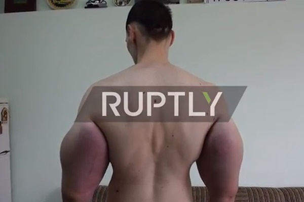 فیلم | پسر ۲۱ سالهای که هرکول روسی لقب گرفت | حجم غیر طبیعی بازو با اوردوز در تزریق