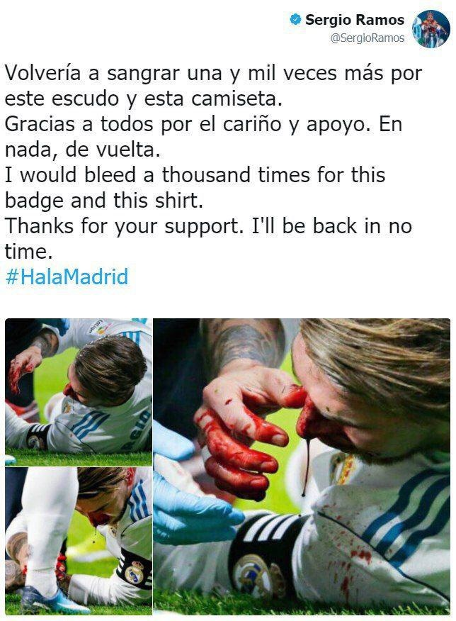توئیت راموس بعد از مصدومیت: هزاران بار دیگر برای این پیراهن خون خواهم داد