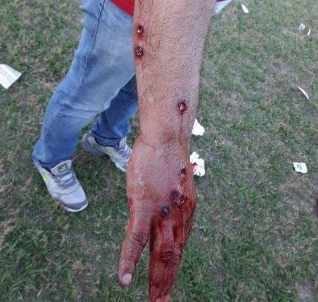 تصاویر | تیراندازی وحشیانه پلیس آرژانتین به بازیکنان فوتبال
