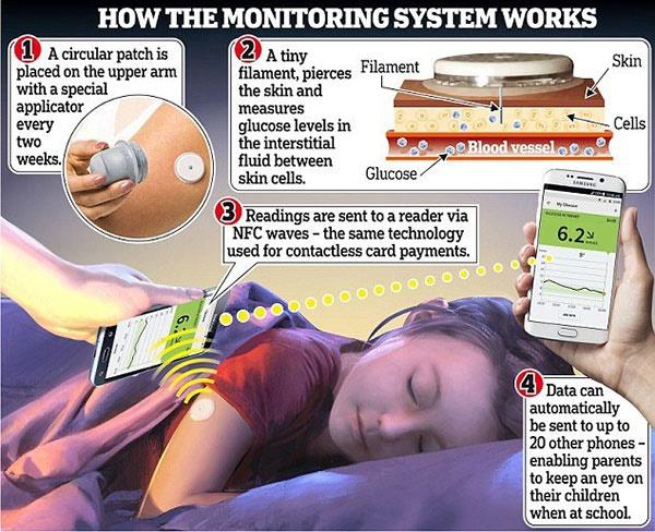 برچسبی که میزان قند بیماران دیابتی را روی موبایل ارسال میکند