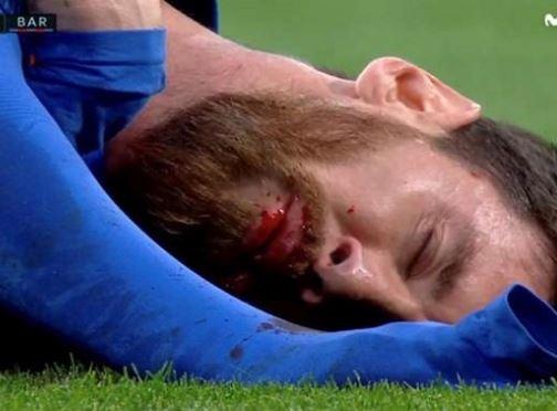 سهم مارسلو در برد بارسلونا