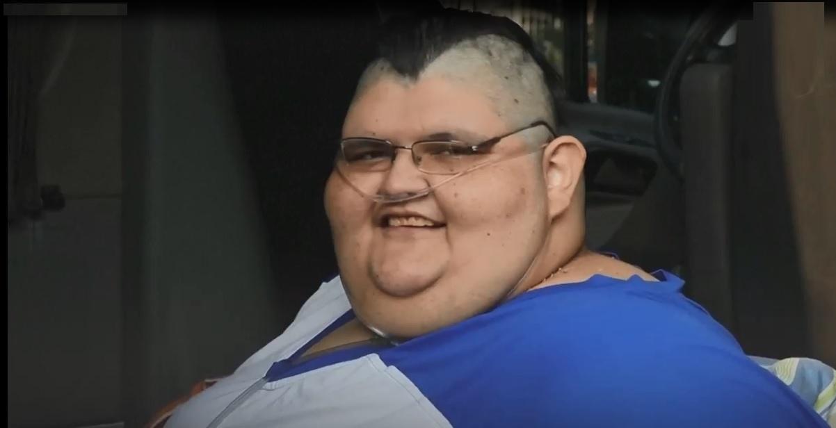 فیلم   چاقترین مرد جهان خود را به دست جراحان میسپارد