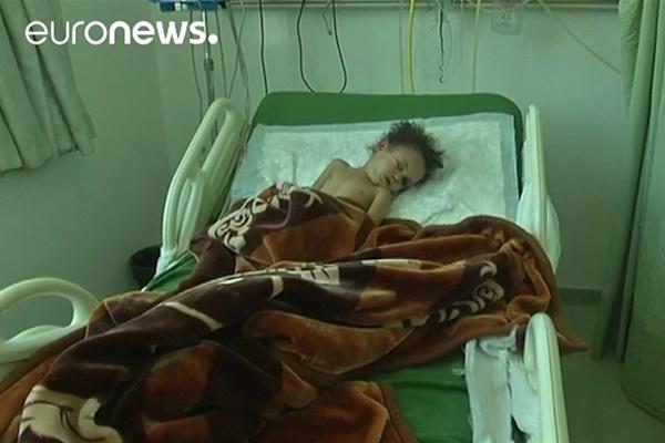 فیلم | روزگار دختری که همه خانوادهاش در بمباران عربستان کشته شدند