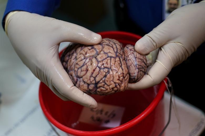 تصاویر | بانکی برای نگهداری مغز انسانها!