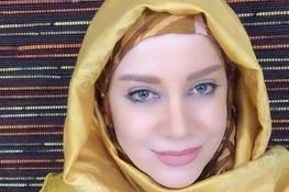 تاثیر مخرب جراحی زیبایی بر زندگی حرفهای بازیگر زن